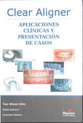 clear-aligner - Prof. Lorenzo Favero - Odontoiatria Specialistica