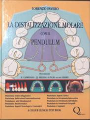 la-distalizzazione-molare - Prof. Lorenzo Favero - Odontoiatria Specialistica