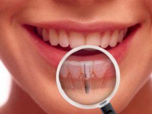 implantologia - Prof. Lorenzo Favero - Dentista