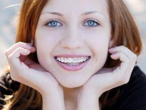 Ortodonzia | Ortodonzia Bambino | Prof Lorenzo Favero