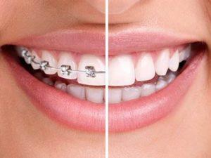 ortodonzia-linguale-invisibile - Prof. Lorenzo favero