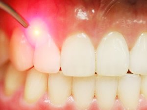 Parodontologia | Parodontite trattamento laser - Prof. Lorenzo Favero - Odontoiatria Specialistica