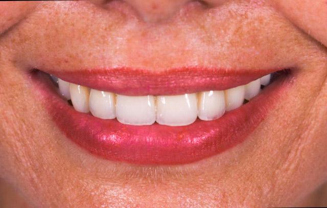 estetica-dentale-faccette-dentista-conegliano-1