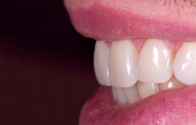 estetica-dentale-faccette-elviri-dentista-motta-di-livenza-1