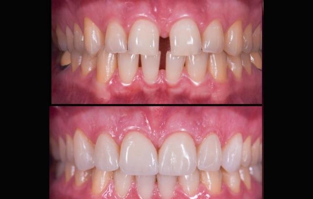 estetica-dentale-faccette-elviri-dentista-motta-di-livenza-2
