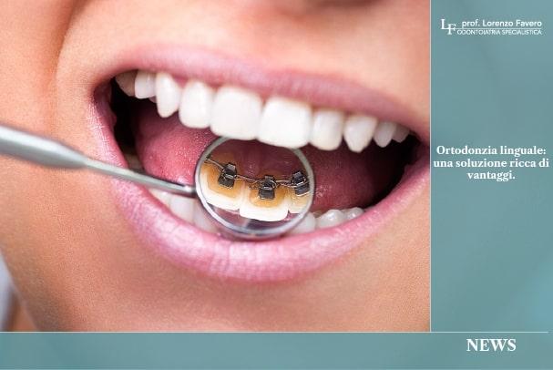 Ortodonzia Linguale | Studio Dentistico Prof. Lorenzo Favero | Dentista Conegliano | Dentista Treviso