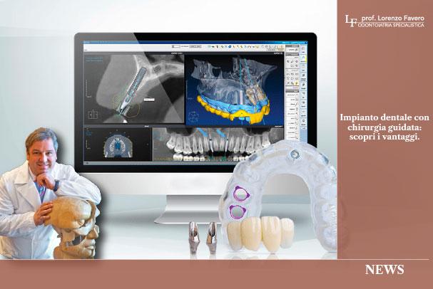 impianto dentale chirurgia guidata | Studio Dentistico Prof Lorenzo Favero