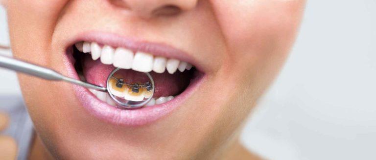 apparecchio | Studio-Dentistico-Prof.Lorenzo-Favero