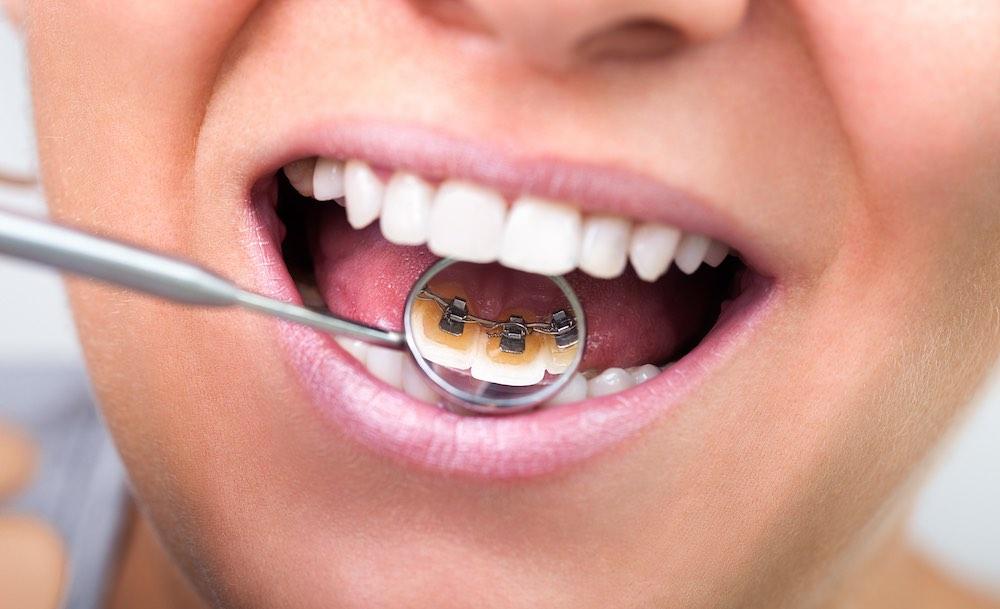 Ortodonzia Linguale Conegliano - Prof. Lorenzo Favero