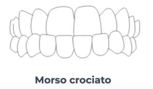 Morso crociato - Ortodonzia Conegliano