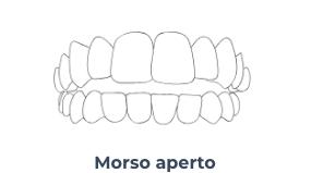Morso aperto - Ortodonzia Conegliano
