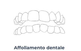 Affollamento dentale - Ortodonzia Conegliano