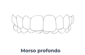 Morso profondo - Ortodonzia Conegliano