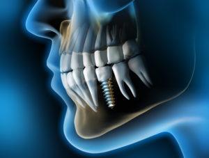durata di un impianto dentale