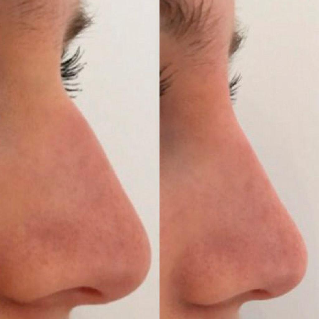 estetica del viso: rinofiller prima e dopo