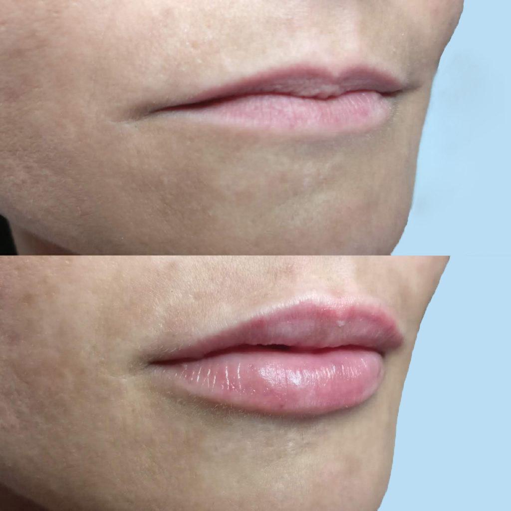 estetica del viso: prima e dopo filler labbra