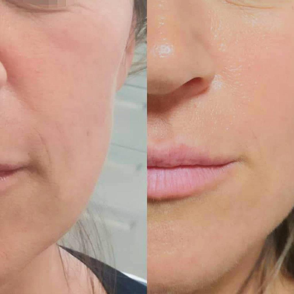 estetica del viso prima e dopo guancia e rughe