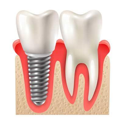 impianti-dentali-controindicazioni